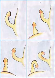 o que é doença de peyronie