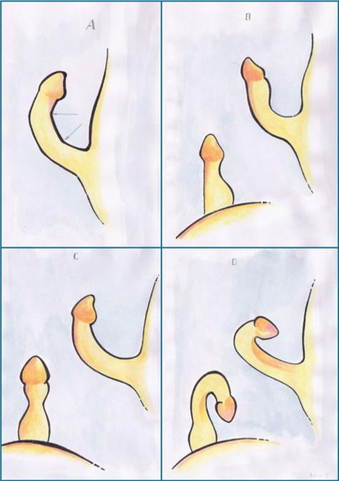 peyronie causada por uretritis
